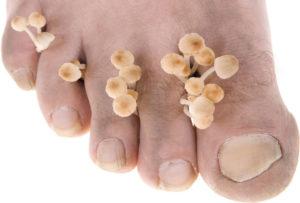 funghi-piede-dell-atleta-micosi-podologo